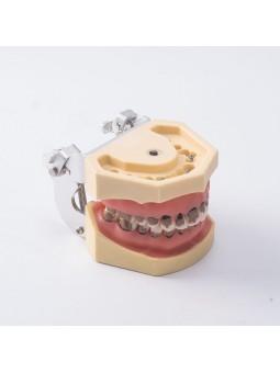 Teach Model 1Pcs Dental Teeth Periodontal Periodontitis Soft Gingivitis Study Lab Model EASYINSMILE